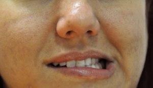 teeth-grinding-004